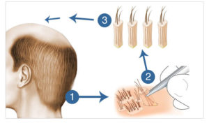 13 benefits of hair transplant