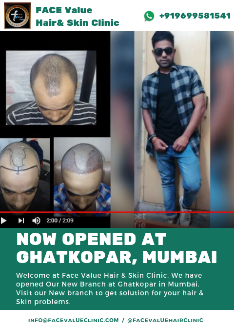 Hair transplant in ghatkopar