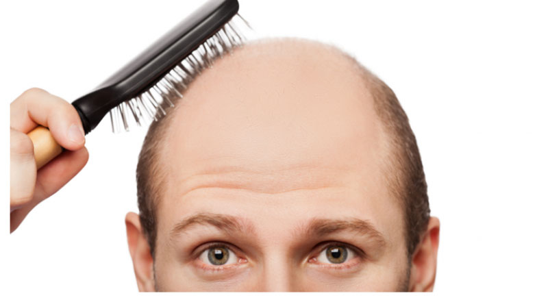 Things-to-Know-Before-Choosing-the-Best-Hair-Transplant-Clinic-in-Mumbai