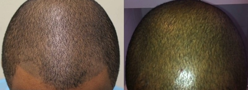 hair transplant results at face value clinic