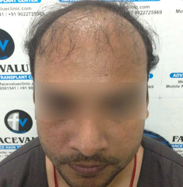 FUE-Hair-Transplant-Surgery-Face-Value-clinic-Patient-1-1