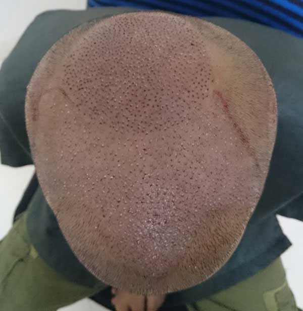 FUE-Hair-Transplant-Surgery-Face-Value-clinic-Patient-1-2