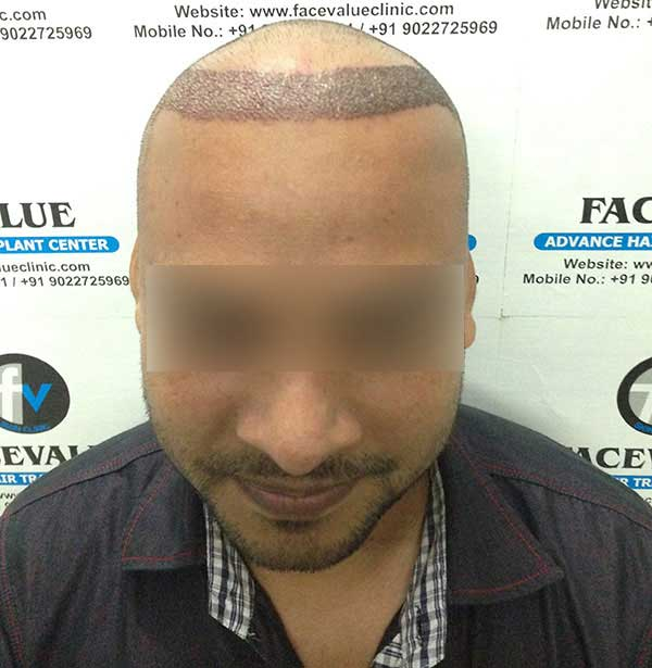 FUE-Hair-Transplant-Surgery-Face-Value-clinic-Patient-1-3