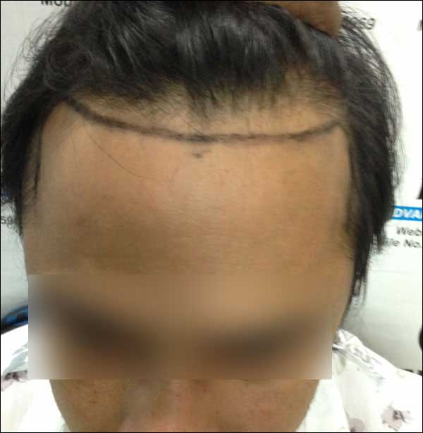 FUE-Hair-Transplant-Surgery-Face-Value-clinic-Patient-10-1