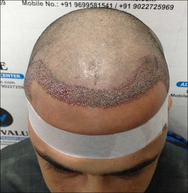 FUE-Hair-Transplant-Surgery-Face-Value-clinic-Patient-10-2