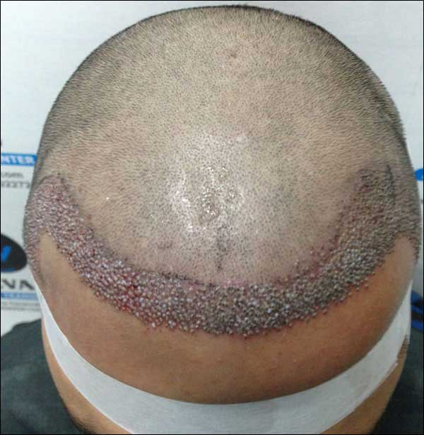 FUE-Hair-Transplant-Surgery-Face-Value-clinic-Patient-10-3