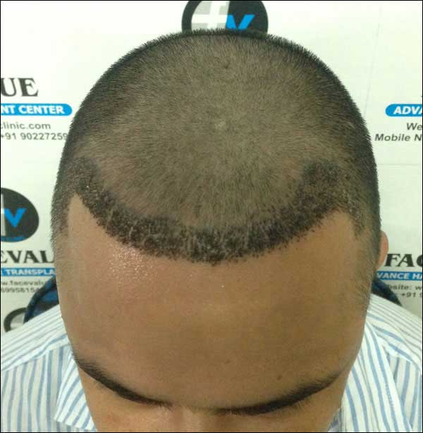 FUE-Hair-Transplant-Surgery-Face-Value-clinic-Patient-10-4