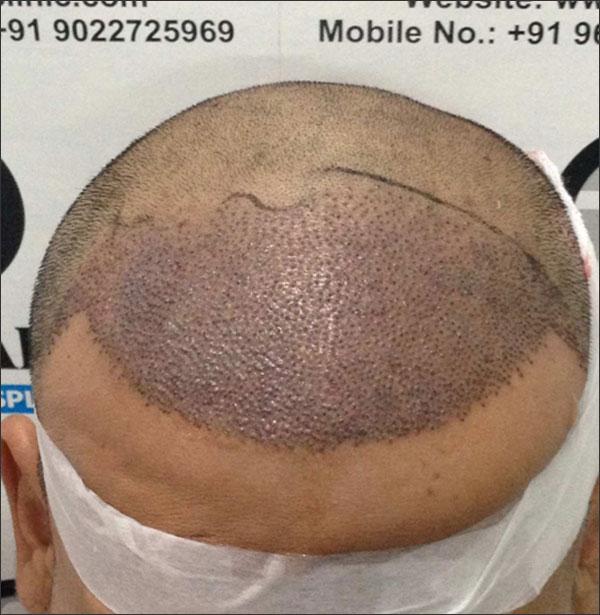 FUE-Hair-Transplant-Surgery-Face-Value-clinic-Patient-11-1