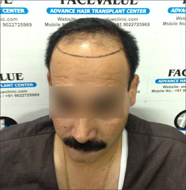 FUE-Hair-Transplant-Surgery-Face-Value-clinic-Patient-11-2