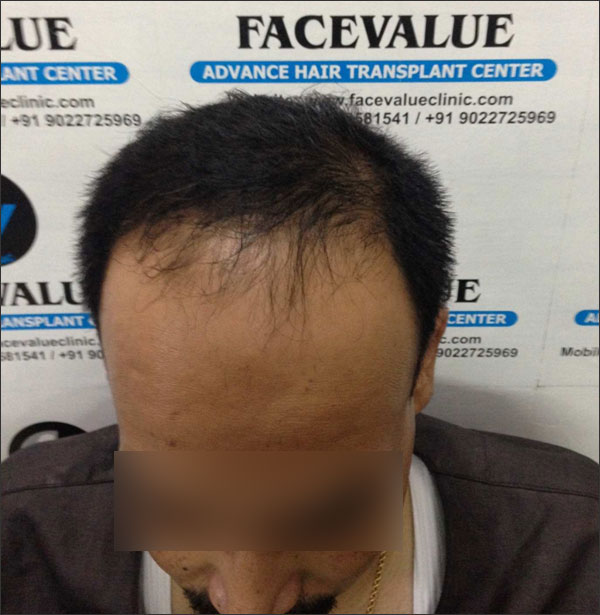 FUE-Hair-Transplant-Surgery-Face-Value-clinic-Patient-11-3