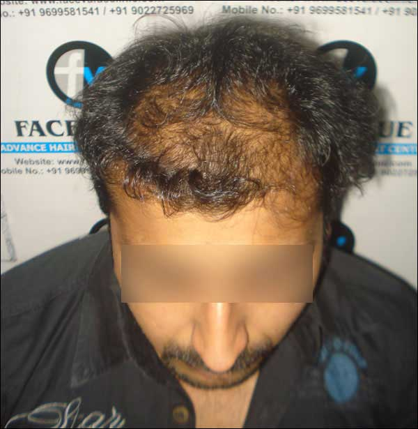 FUE-Hair-Transplant-Surgery-Face-Value-clinic-Patient-12-1