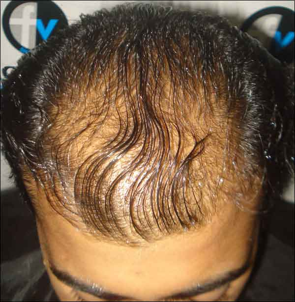 FUE-Hair-Transplant-Surgery-Face-Value-clinic-Patient-12-2