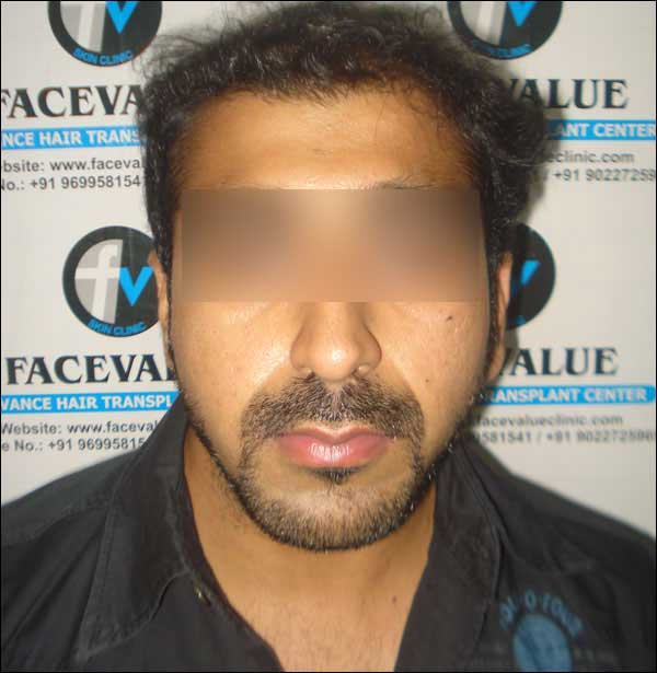 FUE-Hair-Transplant-Surgery-Face-Value-clinic-Patient-12-4