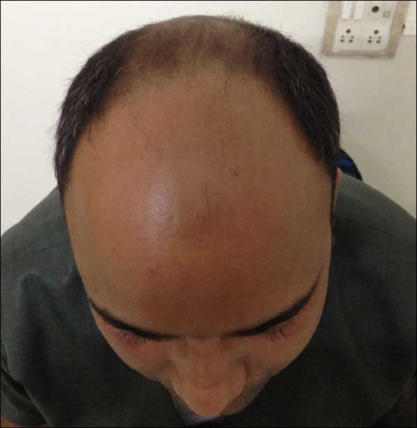 FUE-Hair-Transplant-Surgery-Face-Value-clinic-Patient-13-1
