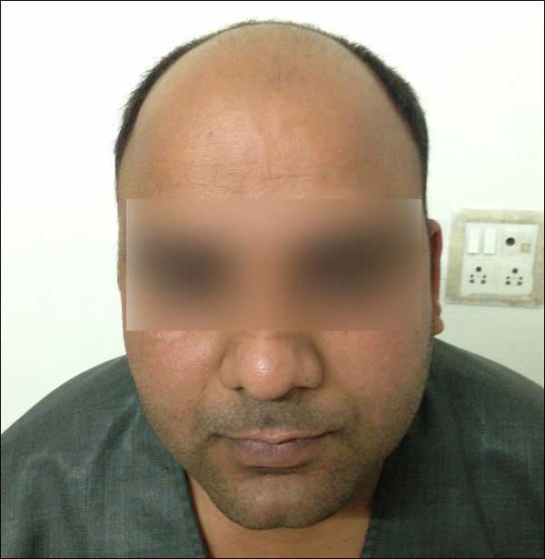 FUE-Hair-Transplant-Surgery-Face-Value-clinic-Patient-13-2