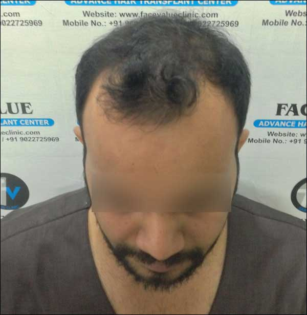 FUE-Hair-Transplant-Surgery-Face-Value-clinic-Patient-14-1