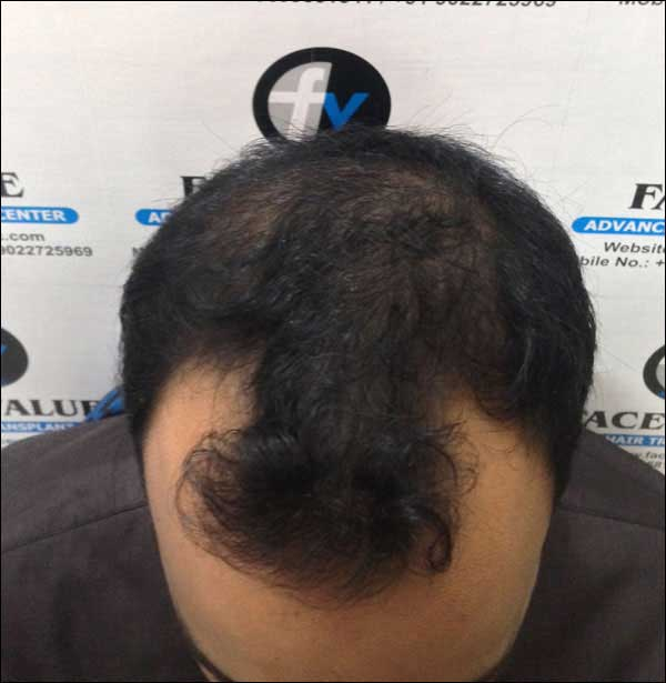 FUE-Hair-Transplant-Surgery-Face-Value-clinic-Patient-14-2