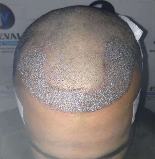 FUE-Hair-Transplant-Surgery-Face-Value-clinic-Patient-14-3