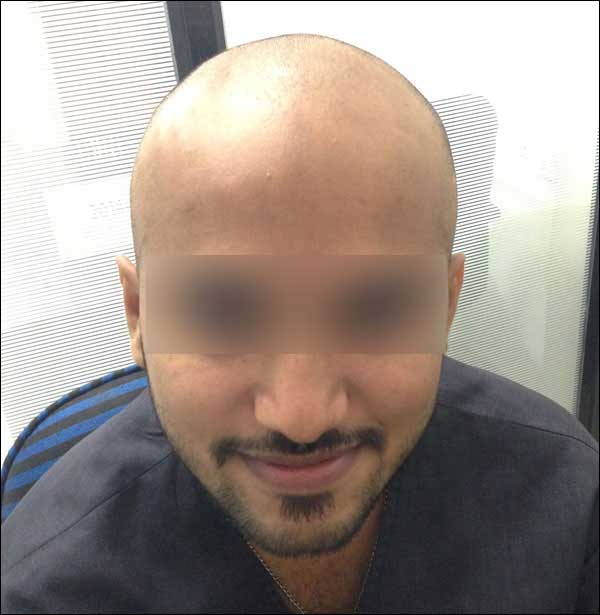 FUE-Hair-Transplant-Surgery-Face-Value-clinic-Patient-15-1