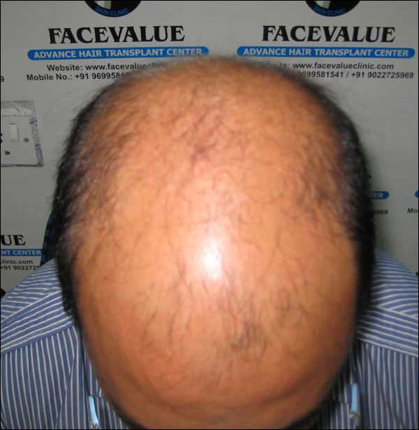 FUE-Hair-Transplant-Surgery-Face-Value-clinic-Patient-16-1