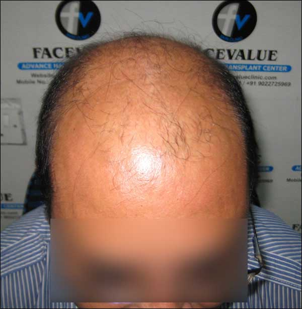 FUE-Hair-Transplant-Surgery-Face-Value-clinic-Patient-16-2