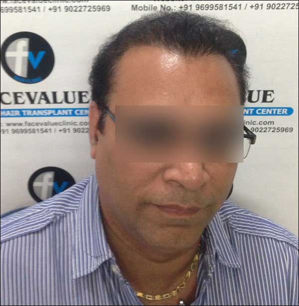 FUE-Hair-Transplant-Surgery-Face-Value-clinic-Patient-16-4