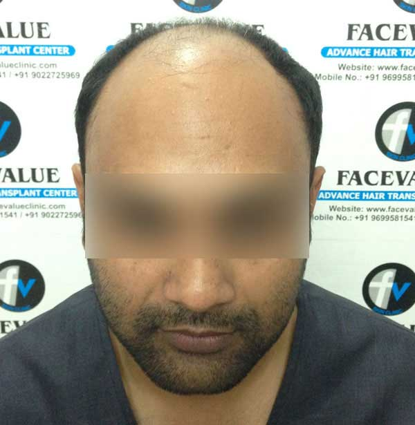 FUE-Hair-Transplant-Surgery-Face-Value-clinic-Patient-2-1
