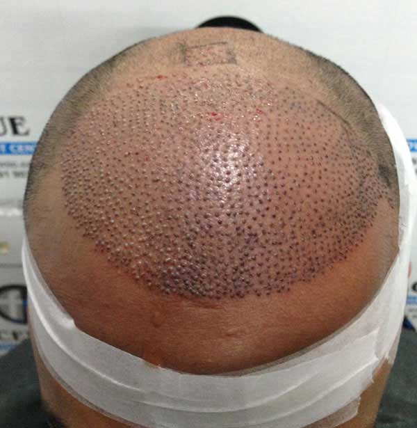 FUE-Hair-Transplant-Surgery-Face-Value-clinic-Patient-2-2