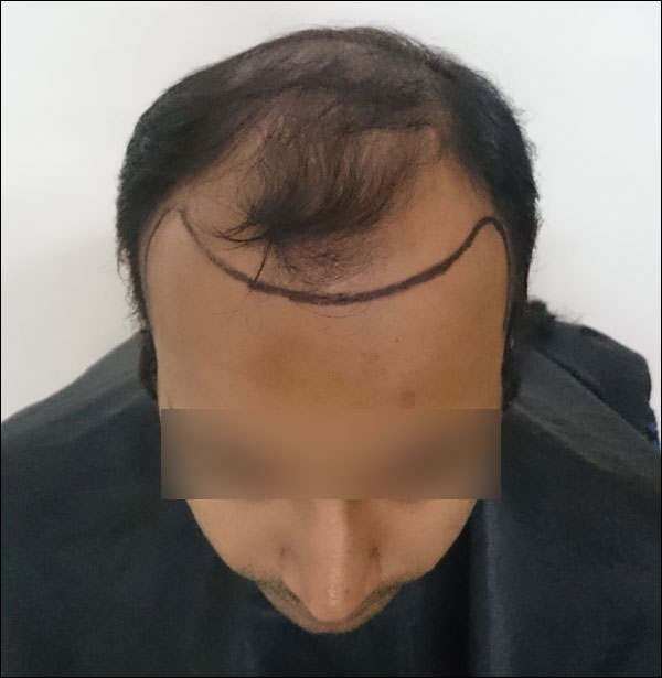 FUE-Hair-Transplant-Surgery-Face-Value-clinic-Patient-25-1