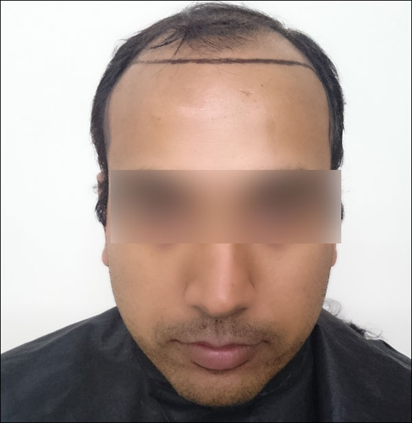FUE-Hair-Transplant-Surgery-Face-Value-clinic-Patient-25-2