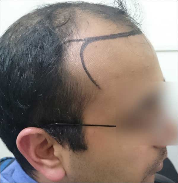 FUE-Hair-Transplant-Surgery-Face-Value-clinic-Patient-25-3