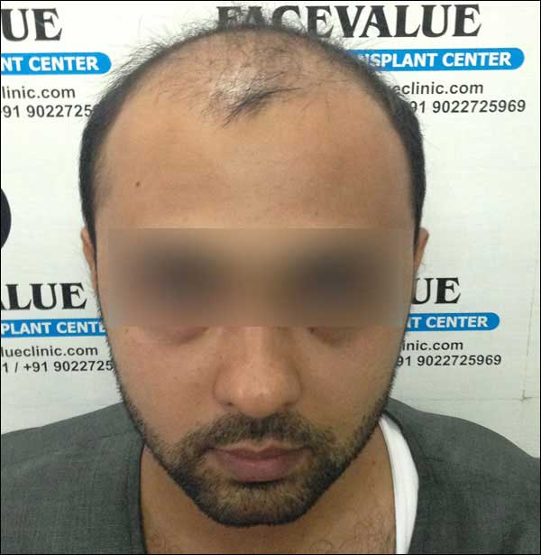 FUE-Hair-Transplant-Surgery-Face-Value-clinic-Patient-26-1
