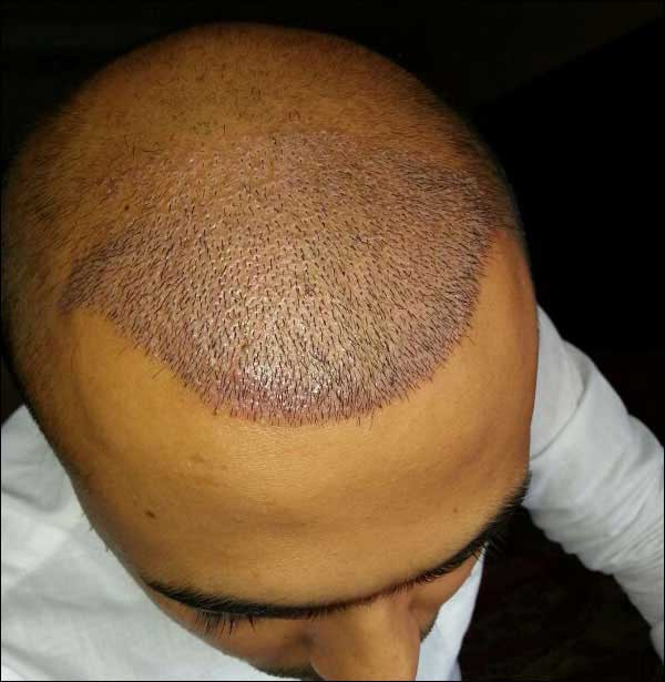 FUE-Hair-Transplant-Surgery-Face-Value-clinic-Patient-26-2