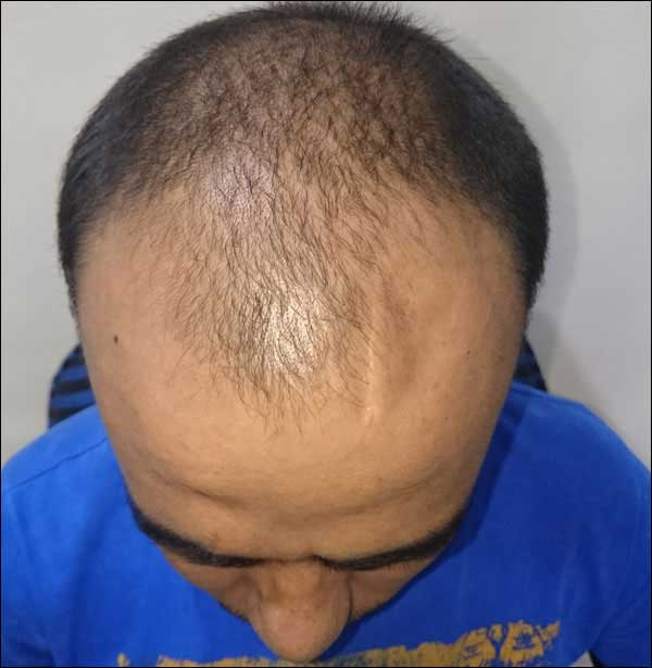 FUE-Hair-Transplant-Surgery-Face-Value-clinic-Patient-28-1