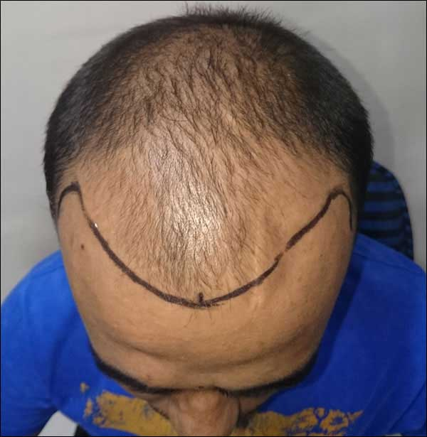 FUE-Hair-Transplant-Surgery-Face-Value-clinic-Patient-28-2