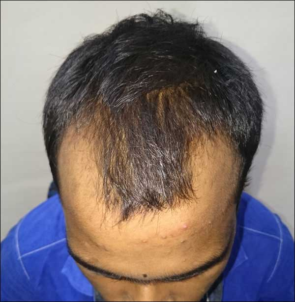 FUE-Hair-Transplant-Surgery-Face-Value-clinic-Patient-29-1