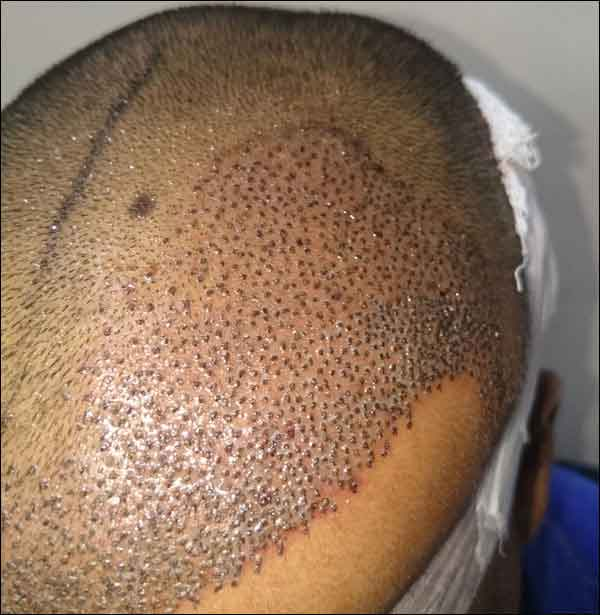 FUE-Hair-Transplant-Surgery-Face-Value-clinic-Patient-29-2