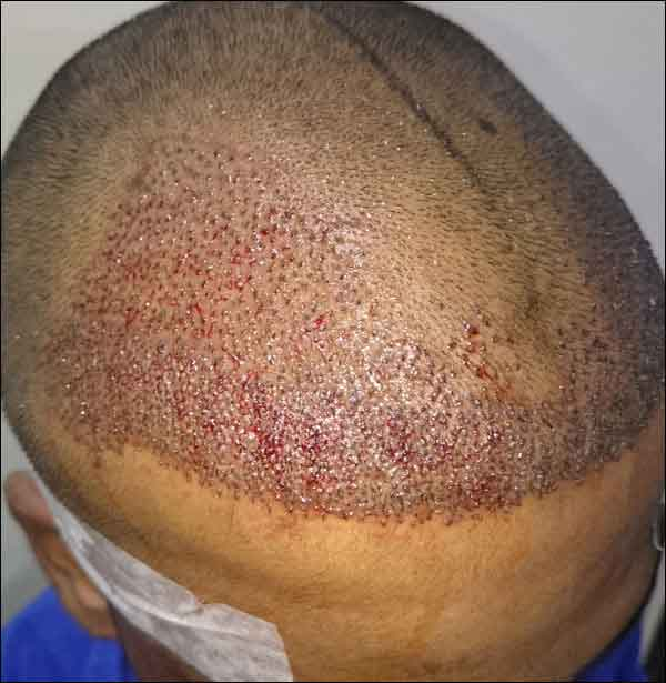 FUE-Hair-Transplant-Surgery-Face-Value-clinic-Patient-29-3