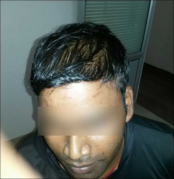 FUE-Hair-Transplant-Surgery-Face-Value-clinic-Patient-29-4