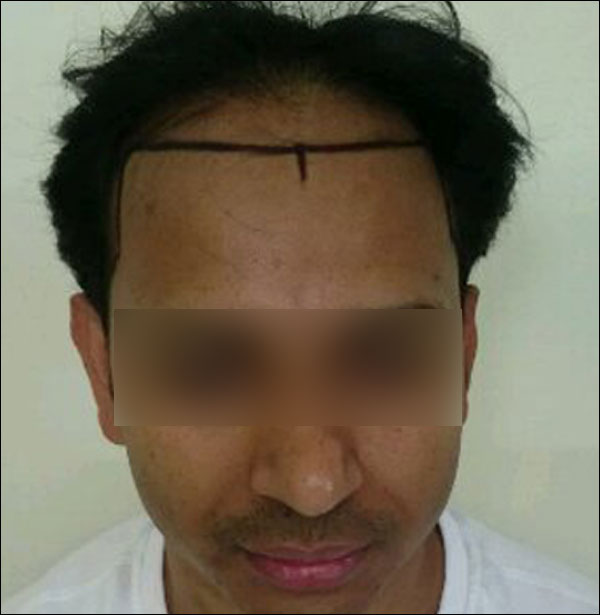 FUE-Hair-Transplant-Surgery-Face-Value-clinic-Patient-3-1