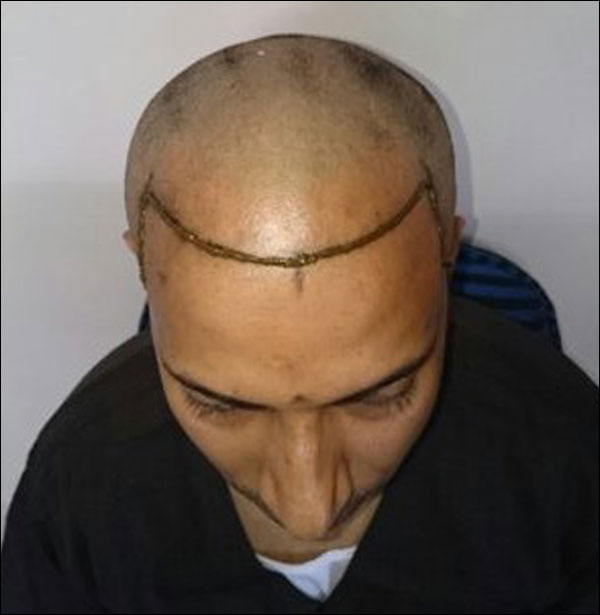 FUE-Hair-Transplant-Surgery-Face-Value-clinic-Patient-3-2