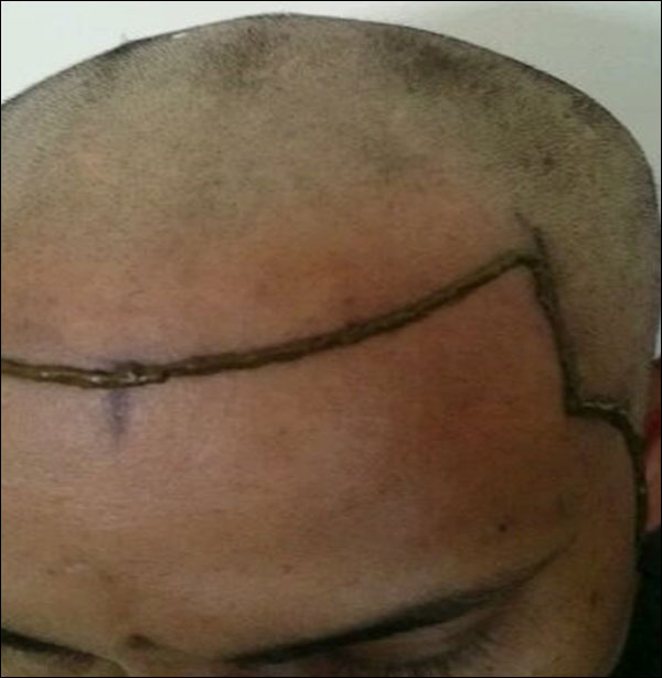 FUE-Hair-Transplant-Surgery-Face-Value-clinic-Patient-3-3