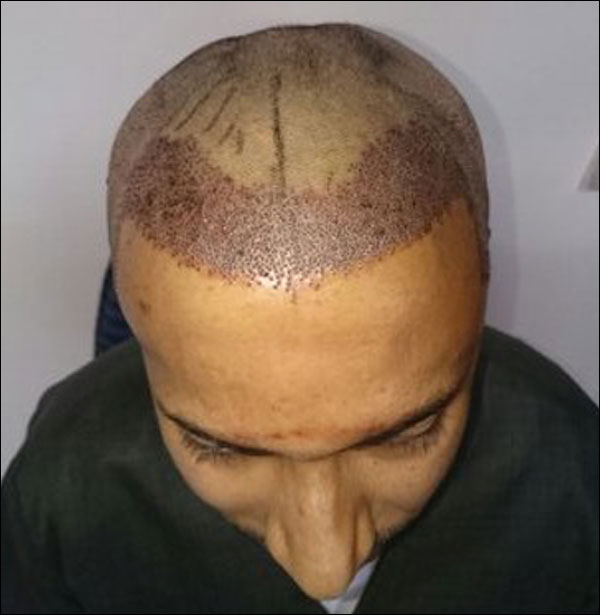 FUE-Hair-Transplant-Surgery-Face-Value-clinic-Patient-3-4