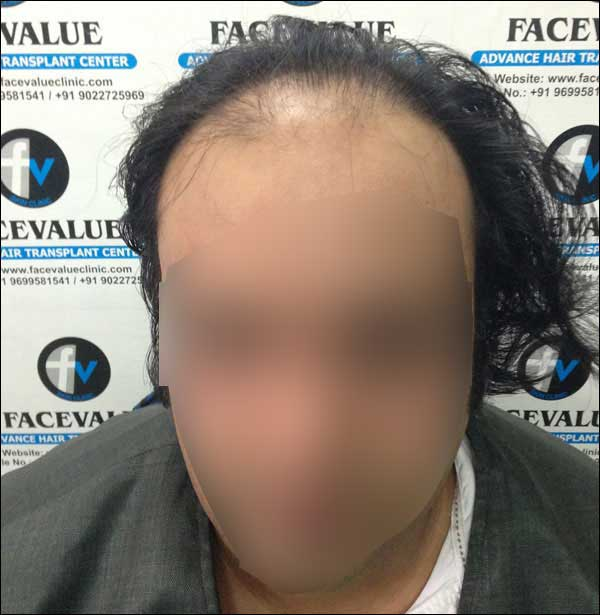FUE-Hair-Transplant-Surgery-Face-Value-clinic-Patient-30-1