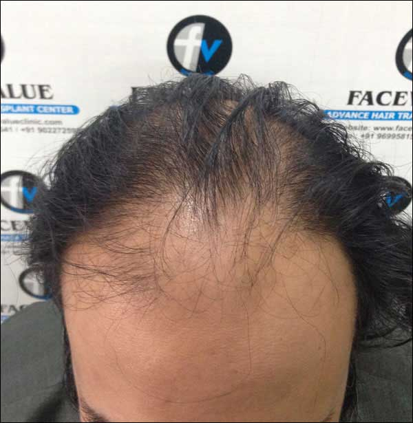 FUE-Hair-Transplant-Surgery-Face-Value-clinic-Patient-30-2