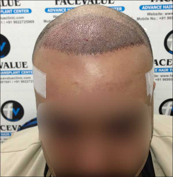 FUE-Hair-Transplant-Surgery-Face-Value-clinic-Patient-30-3