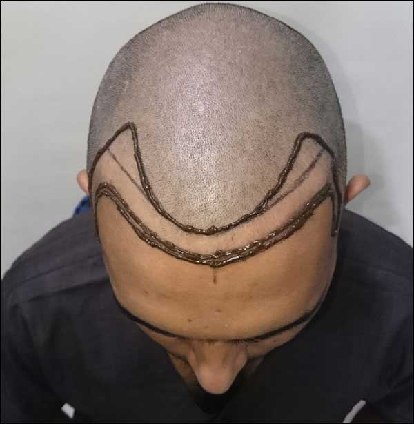 FUE-Hair-Transplant-Surgery-Face-Value-clinic-Patient-31-1