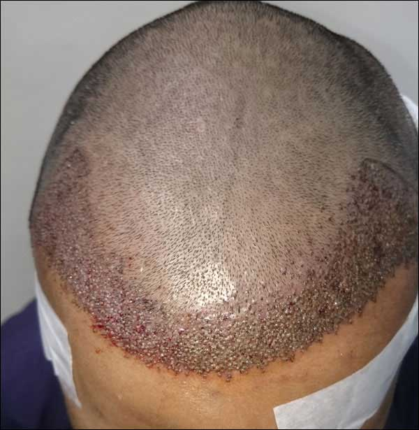 FUE-Hair-Transplant-Surgery-Face-Value-clinic-Patient-31-2