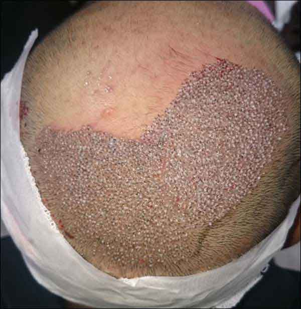 FUE-Hair-Transplant-Surgery-Face-Value-clinic-Patient-1-10