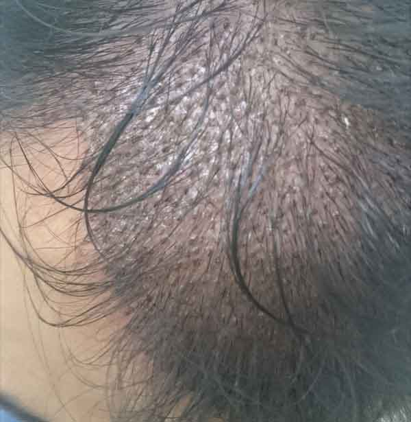 FUE-Hair-Transplant-Surgery-Face-Value-clinic-Patient-1-11